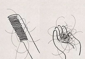 掉头发吃什么好 脱发吃什么能治疗